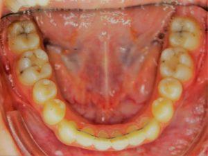 Cabinet d'orthodontie du docteur Samer KADIB ALBAN à Lyon 8e